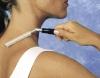 Dermapunktur Antischmerz-Roller 100